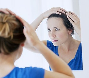 Hair loss. womanhairloss